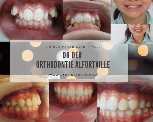orthodontie alfortville docteur der
