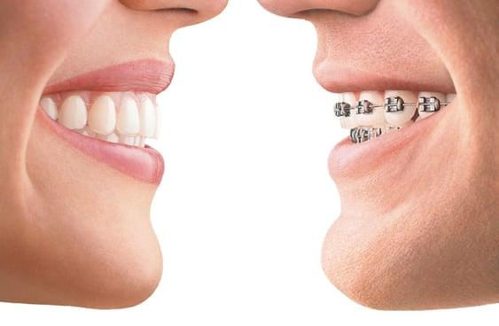 orthodontie alfortville Invisalign Dr Der Arminee