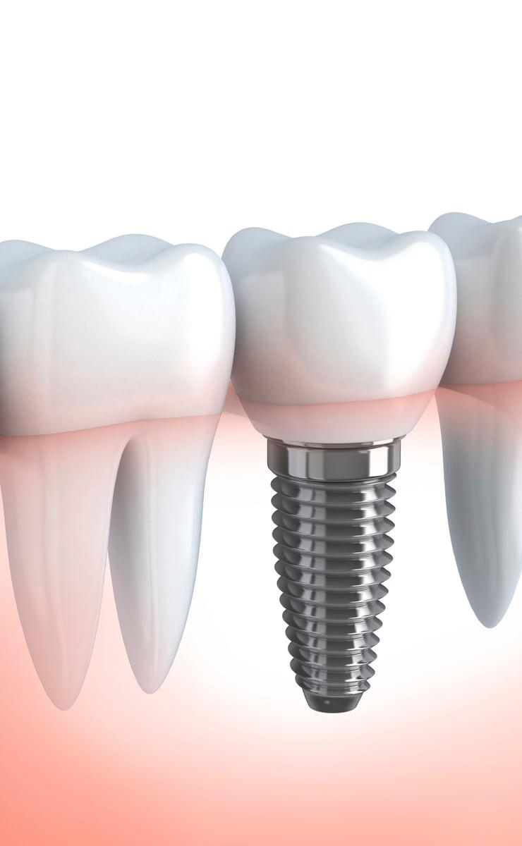 Dantų implantacija Palangoje