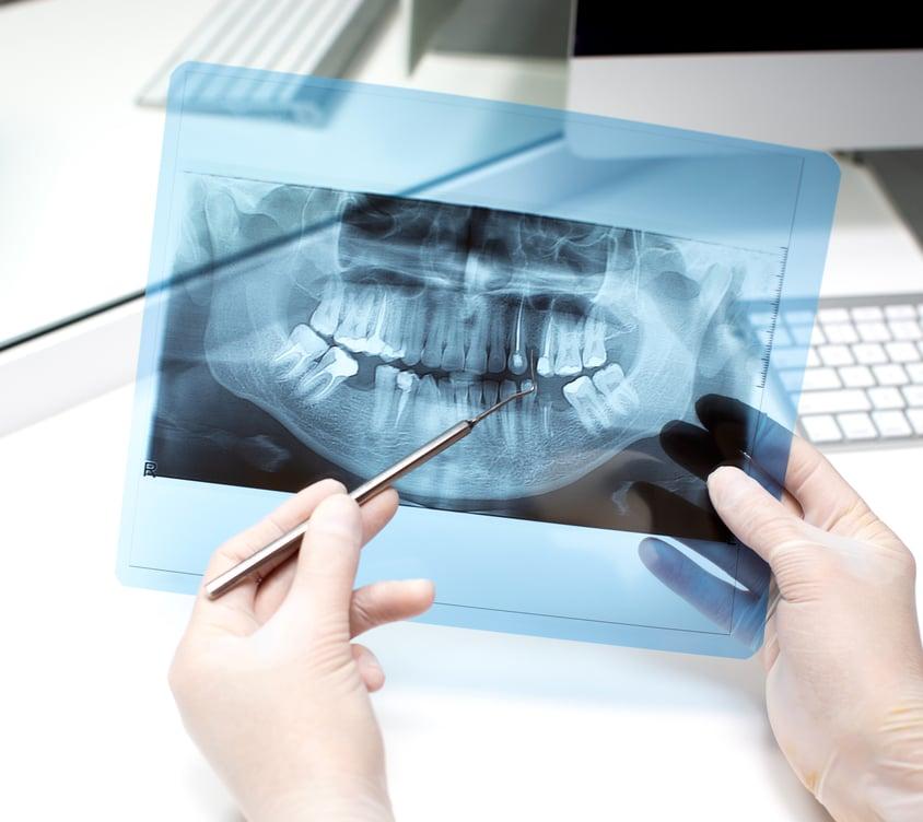 Panoraminė rentgeno nuotrauka Palanga